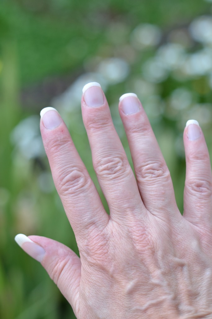 7 Reasons Your Fingers Are Swollen foto